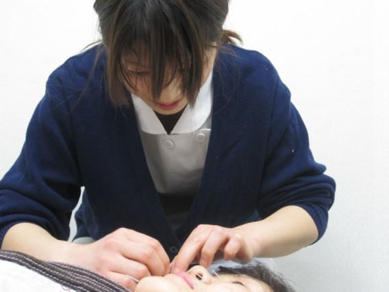 美容鍼(びようしん)