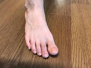 足の指の捻挫(15歳)大田区の整体・ケガにも対応
