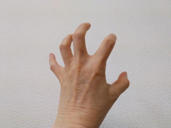 症例:指の痛みの改善(50代・男性)~大田区池上の整体・治療院トゥルーヴォイスミー~~