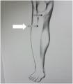 足三里のツボ、膝の痛み、食欲不振など